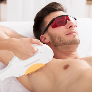 man doing chest and abdomen laser hair removal