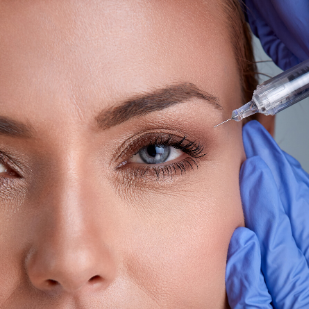 woman doing botox filler into crows feet eye wrinkles