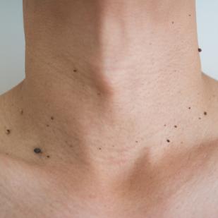 man skin tag removal